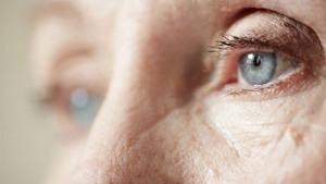 dementie oog